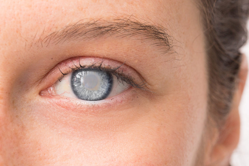 All That You Need to Know About Cataracts